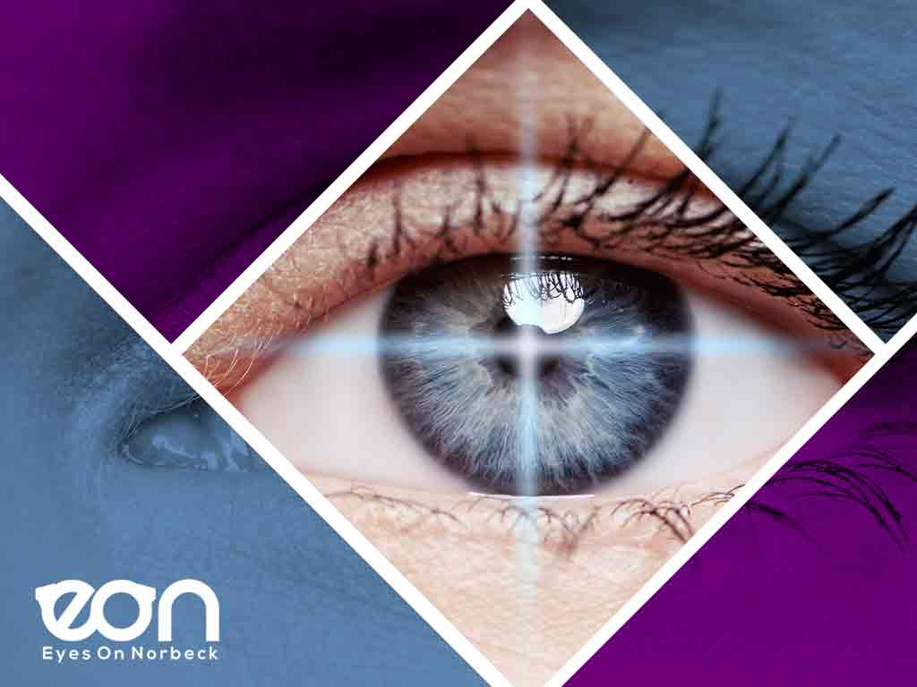 What You Can Expect Before, During and After LASIK