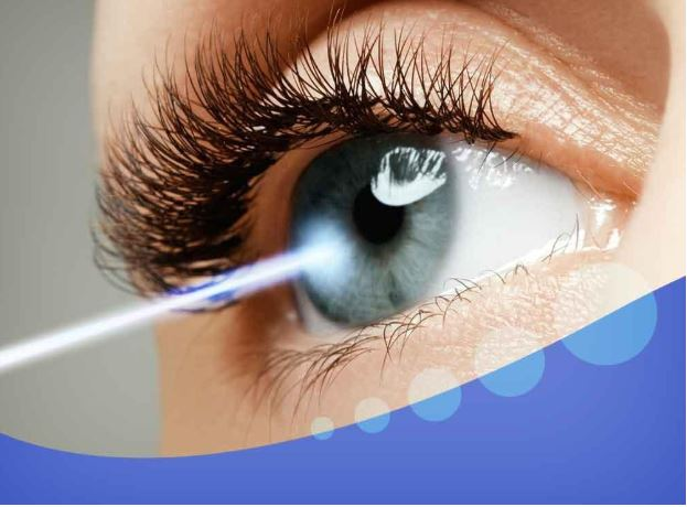 What to Expect After LASIK